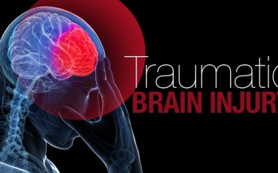 Diagnosing Traumatic Brain Injuries
